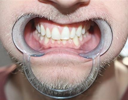 Retrattori Guance Dentali Per Dentisti Per Adulti E Bimbi