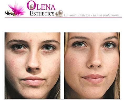 Microdermoabrasione viso eliminare macchie e cicatrici