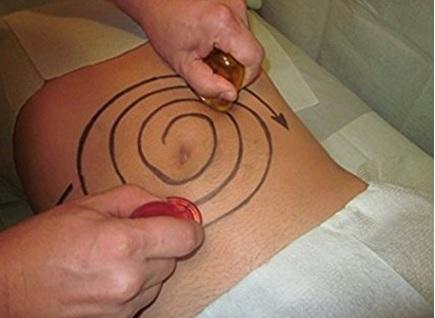 Coppettazione tazza per massaggi